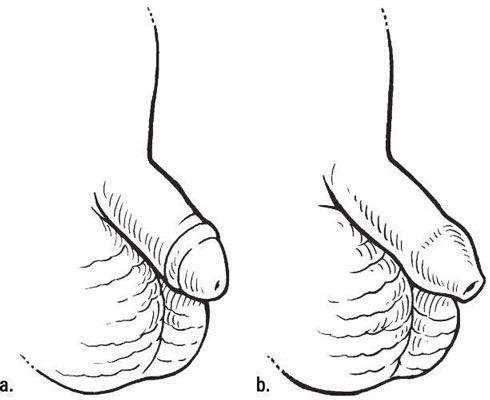 Ein beschnittener Penis (a) und ein unbeschnittenen Penis (b). [Credit: Illustration von Kathryn Born, MA]